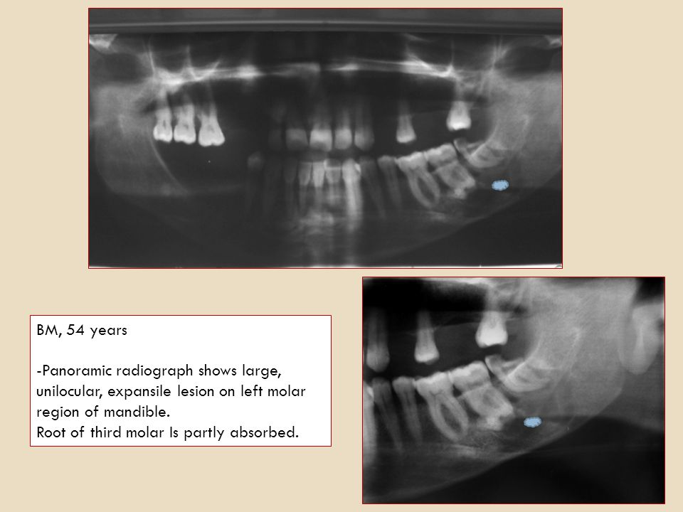 BM, 54 years Panoramic radiograph shows large, unilocular, expansile lesion on left molar region of mandible.