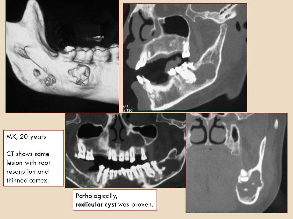 MK, 20 years CT shows same lesion with root resorption and thinned cortex.