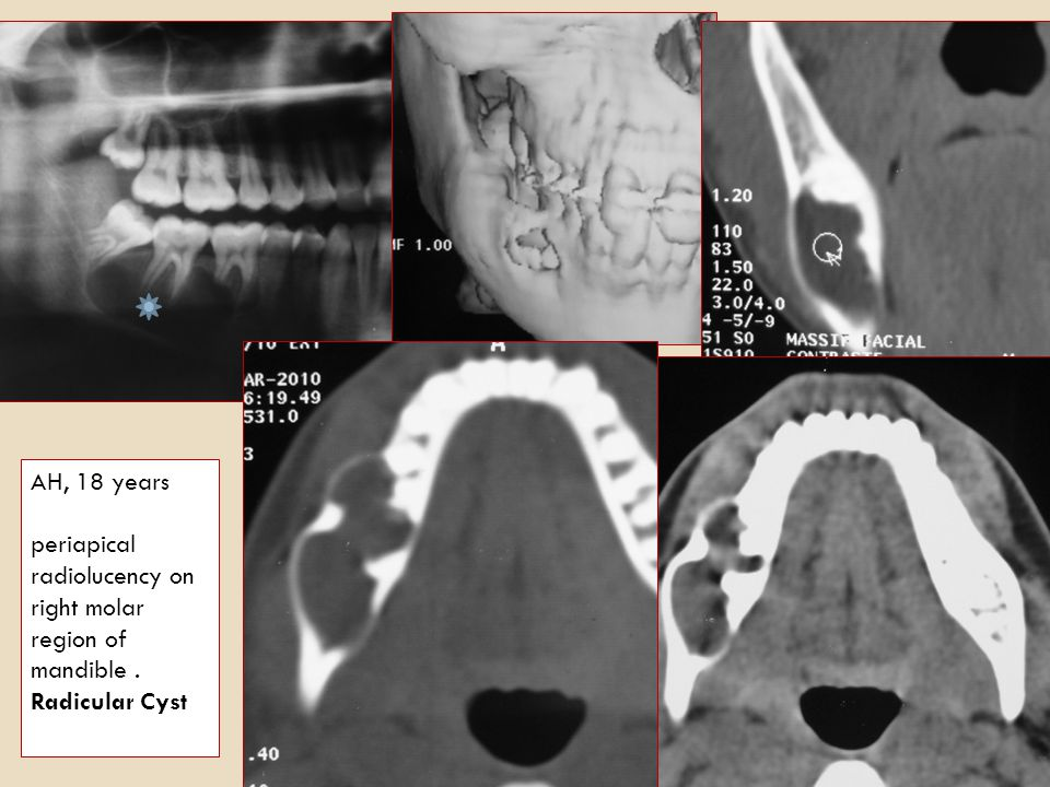 AH, 18 years periapical radiolucency on right molar region of mandible . Radicular Cyst