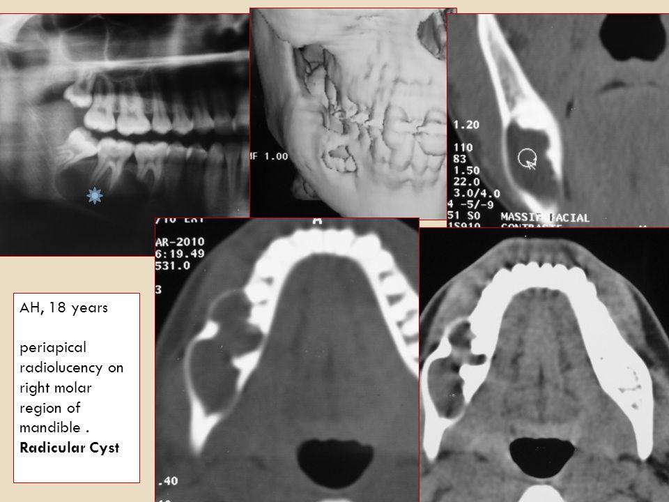 AH, 18 years periapical radiolucency on right molar region of mandible . Radicular Cyst