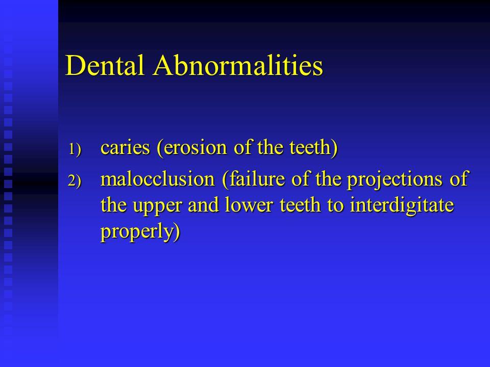 Dental Abnormalities caries (erosion of the teeth)