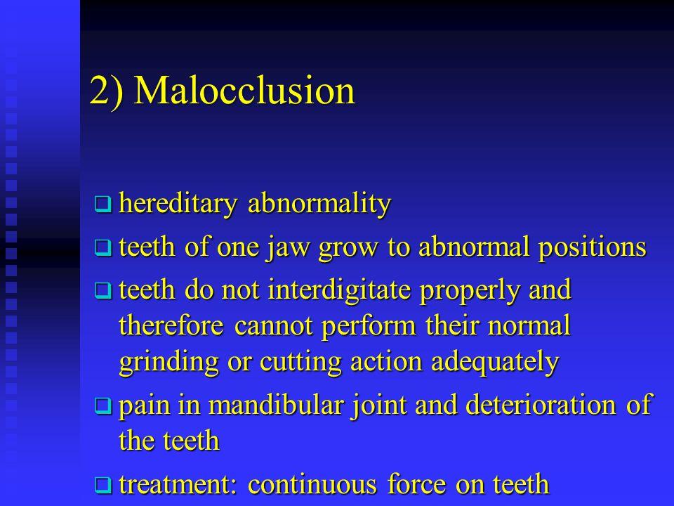 2) Malocclusion hereditary abnormality