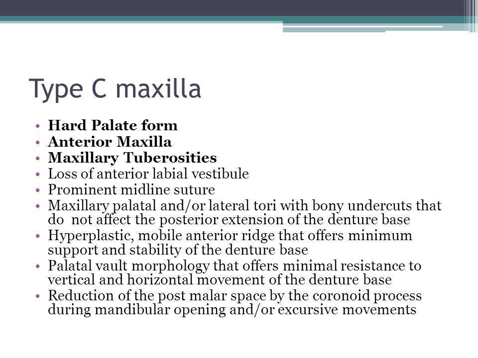Type C maxilla Hard Palate form Anterior Maxilla