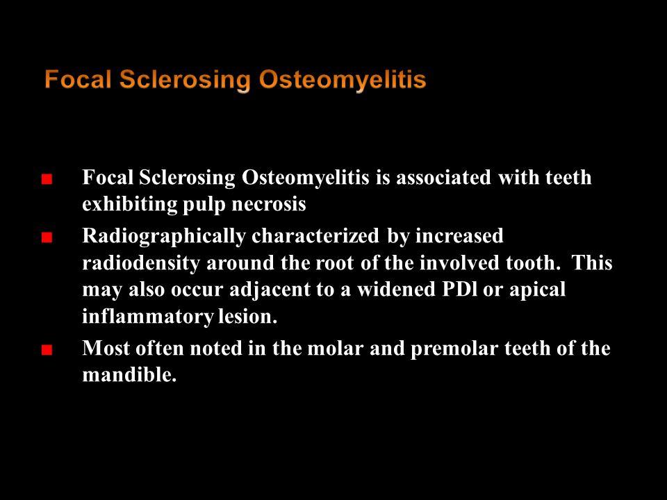 Focal Sclerosing Osteomyelitis