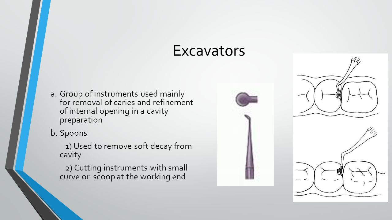Excavators a. Group of instruments used mainly for removal of caries and refinement of internal opening in a cavity preparation.