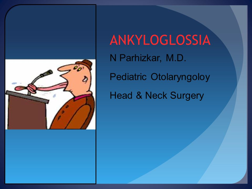 ANKYLOGLOSSIA N Parhizkar, M.D. Pediatric Otolaryngoloy