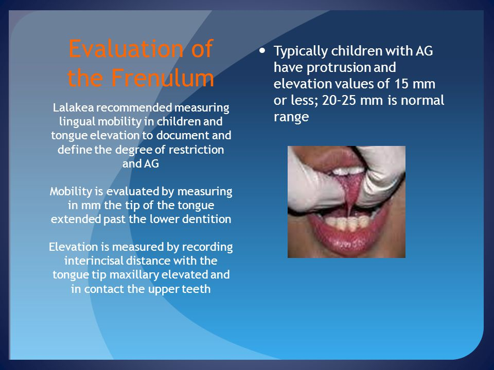 Evaluation of the Frenulum