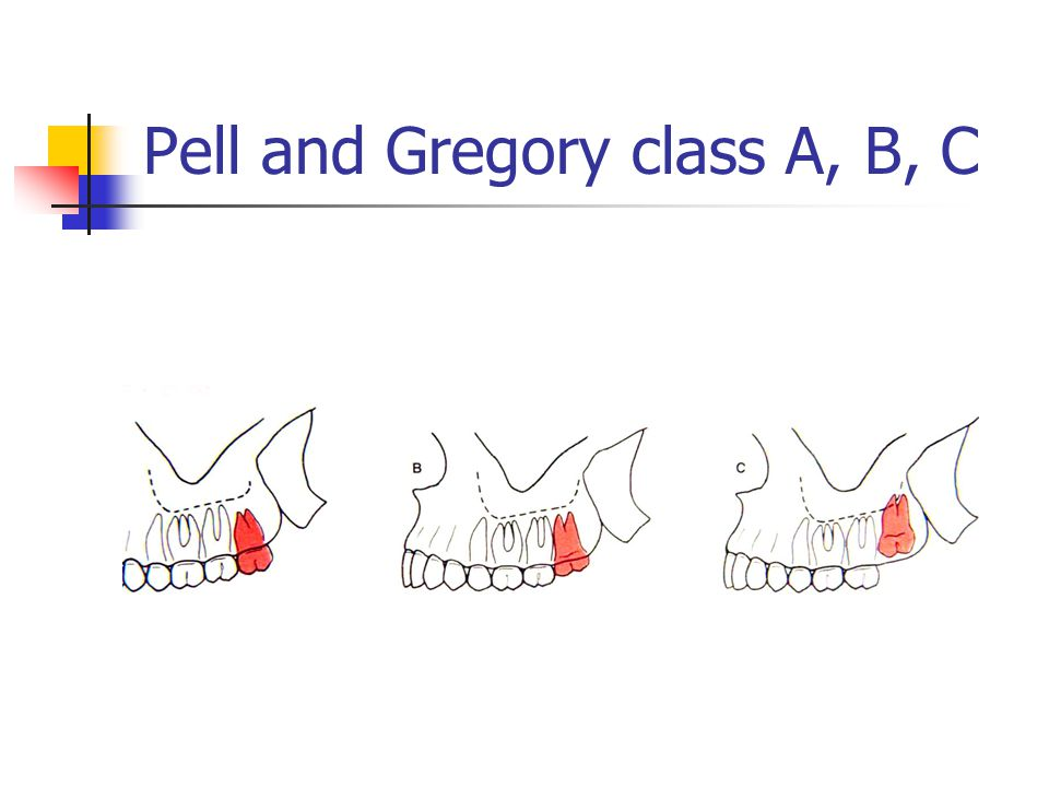 Pell and Gregory class A, B, C