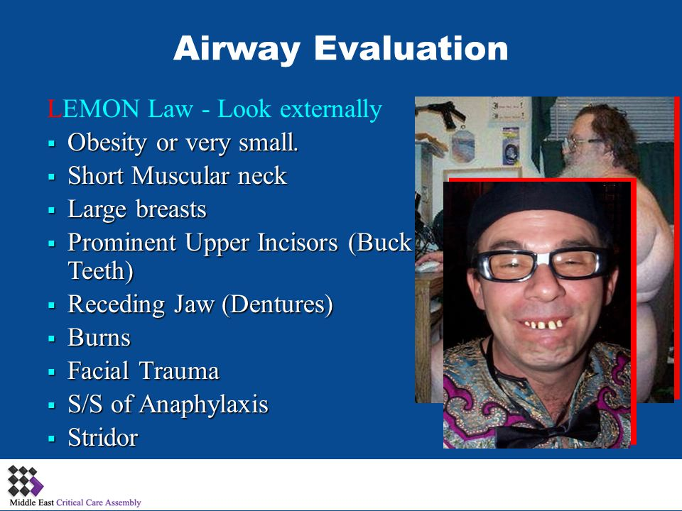 Airway Evaluation LEMON Law - Look externally Obesity or very small.
