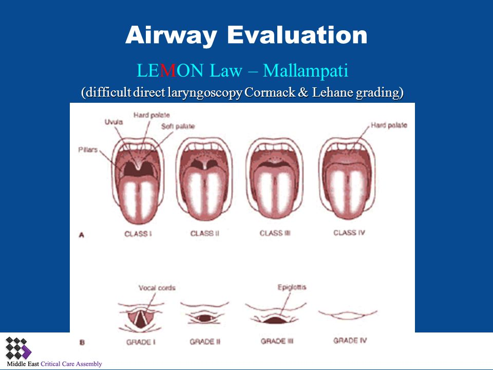 (difficult direct laryngoscopy Cormack & Lehane grading)