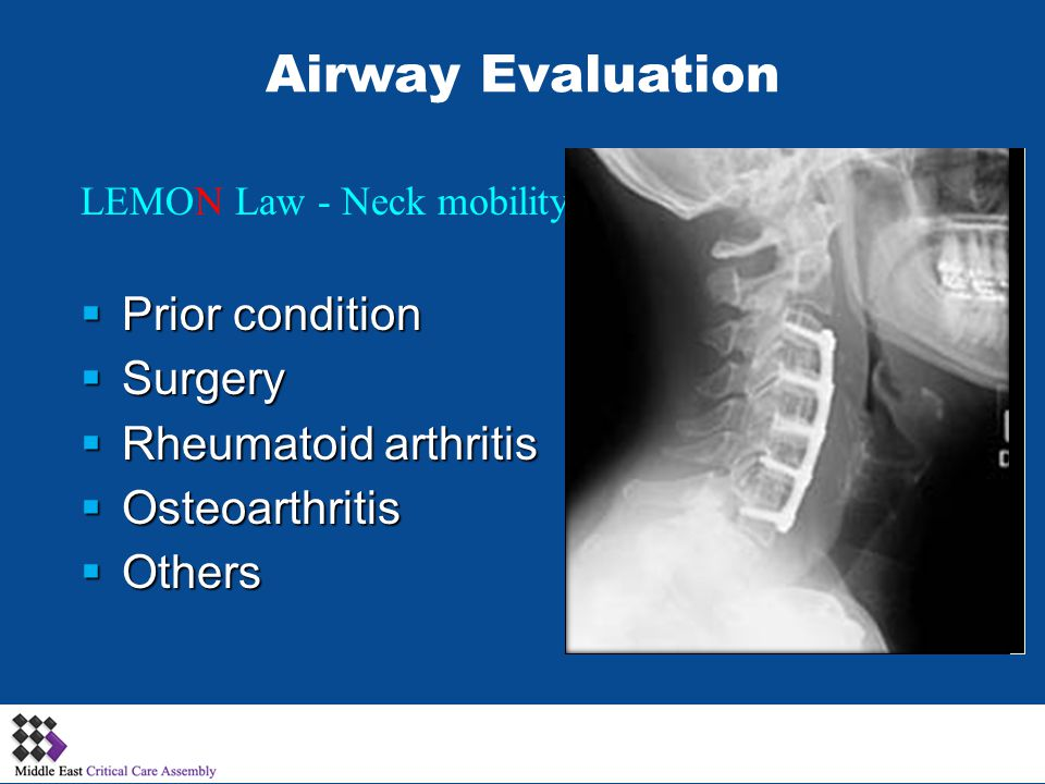 Airway Evaluation Prior condition Surgery Rheumatoid arthritis