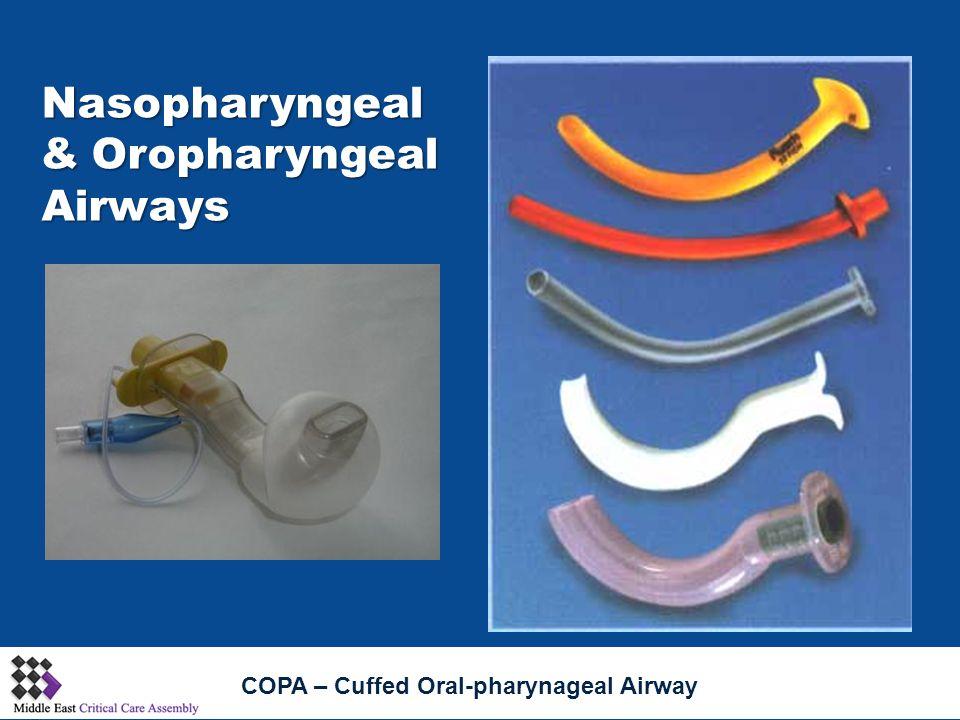 Nasopharyngeal &Oropharyngeal Airways