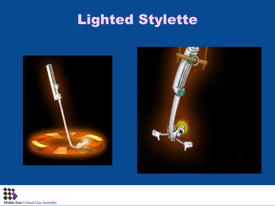 Lighted Stylette Disadvantages Blind technique May damage airway