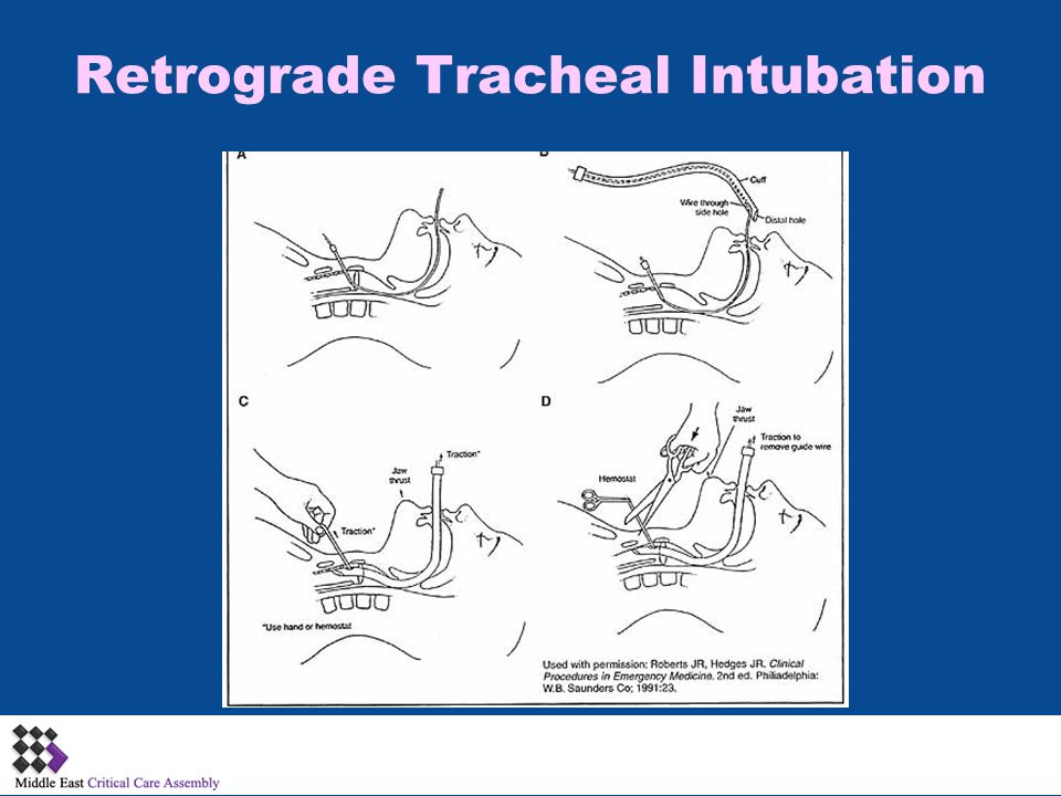 Retrograde Tracheal Intubation