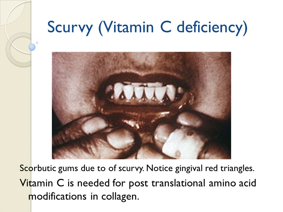 Scurvy (Vitamin C deficiency)