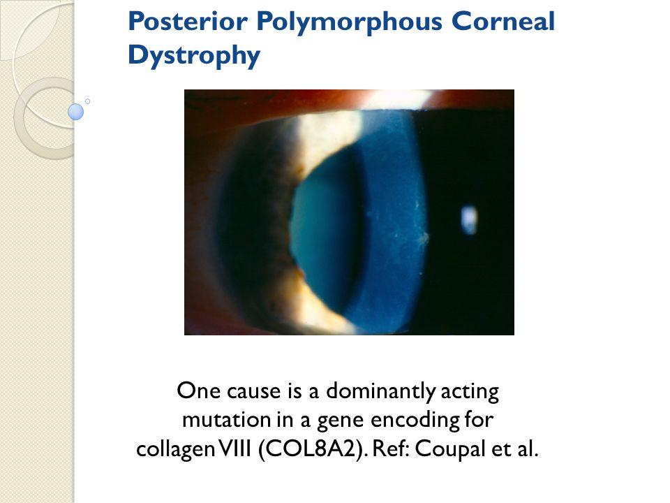 Posterior Polymorphous Corneal Dystrophy
