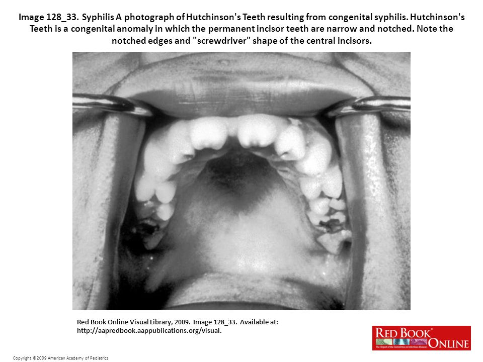 Image 128_33. Syphilis A photograph of Hutchinson s Teeth resulting from congenital syphilis. Hutchinson s Teeth is a congenital anomaly in which the permanent incisor teeth are narrow and notched. Note the notched edges and screwdriver shape of the central incisors.
