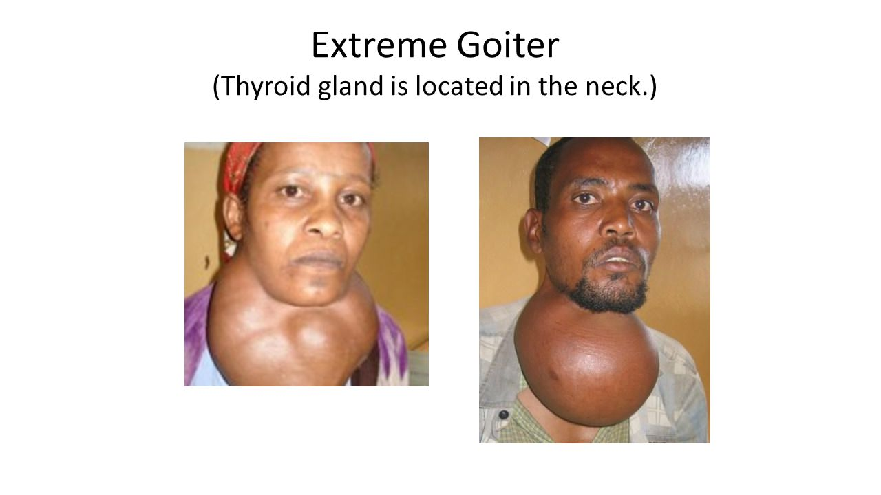 Extreme Goiter (Thyroid gland is located in the neck.)