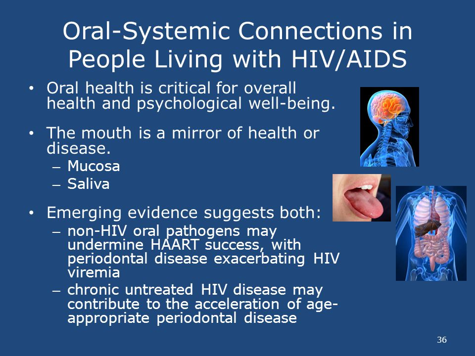 Oral-Systemic Connections in People Living with HIV/AIDS