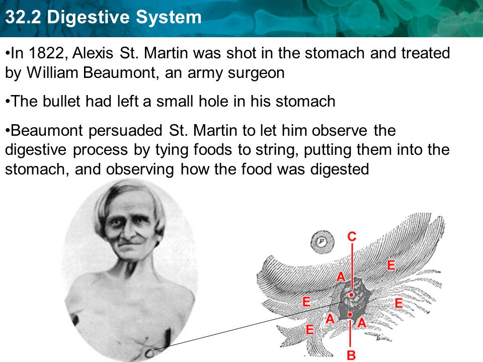 In 1822, Alexis St. Martin was shot in the stomach and treated by William Beaumont, an army surgeon
