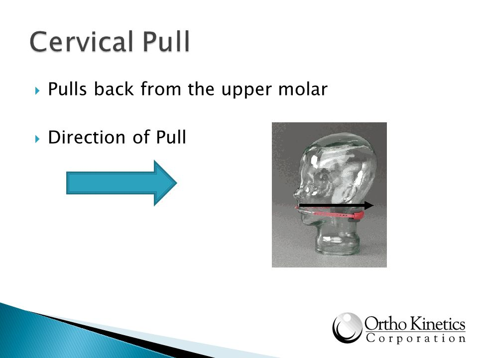 Cervical Pull Pulls back from the upper molar Direction of Pull