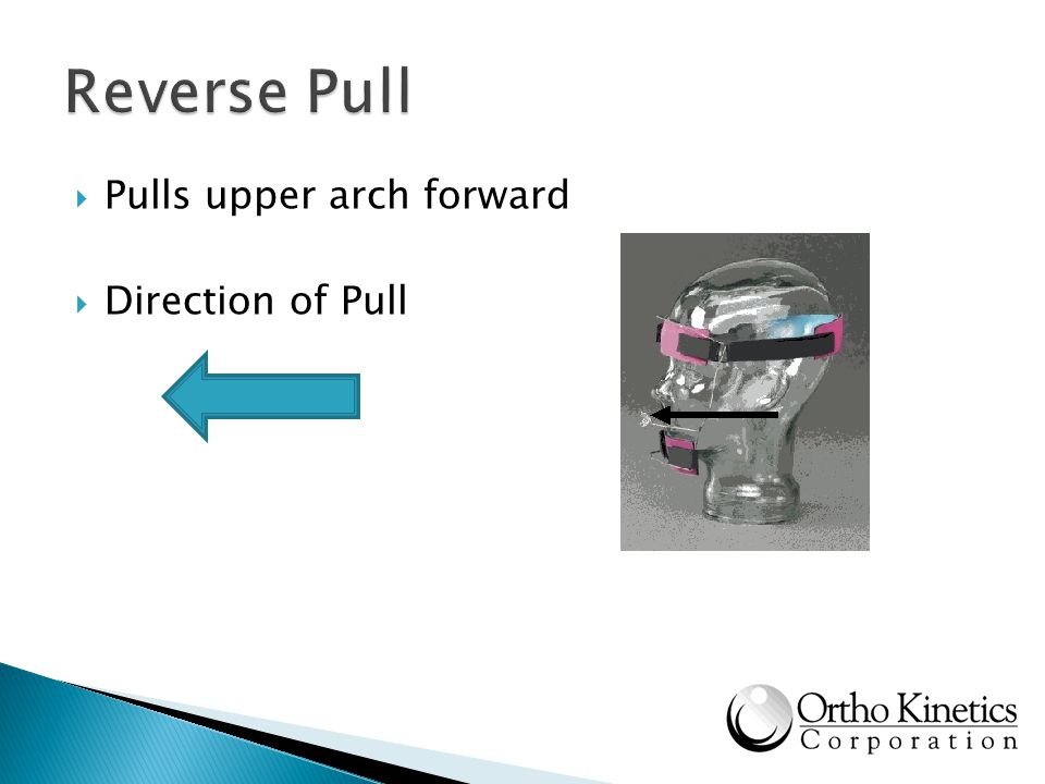 Reverse Pull Pulls upper arch forward Direction of Pull