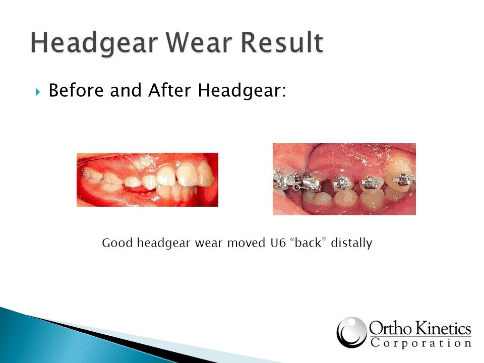 Headgear Wear Result Before and After Headgear:
