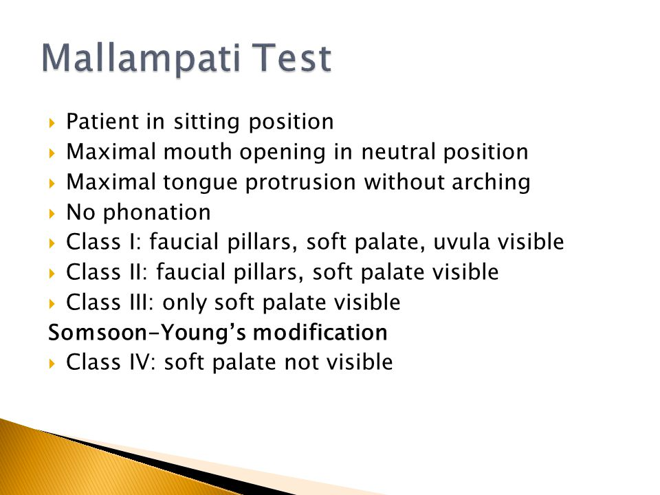Mallampati Test Patient in sitting position