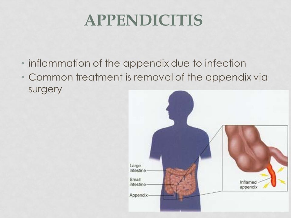 appendicitis inflammation of the appendix due to infection