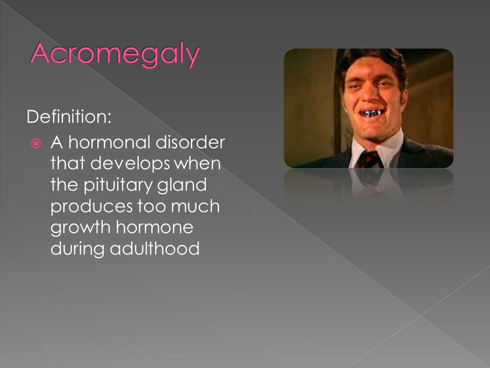 Acromegaly Definition: