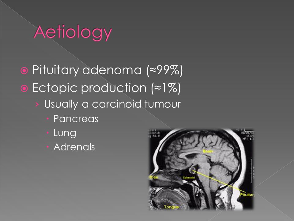 Aetiology Pituitary adenoma (≈99%) Ectopic production (≈1%)