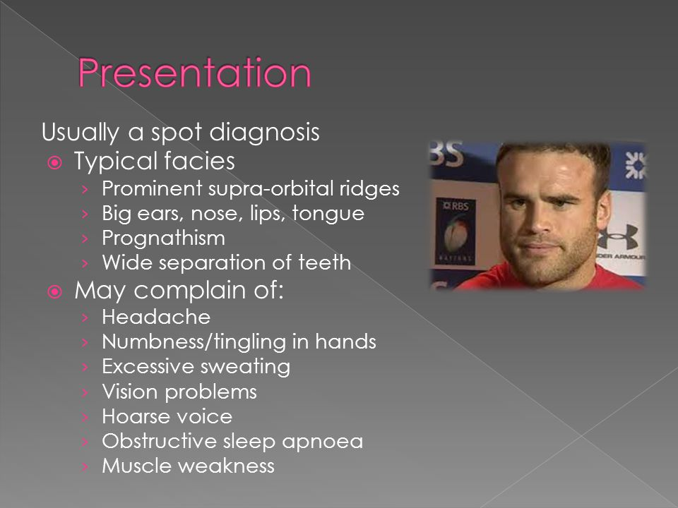 Presentation Usually a spot diagnosis Typical facies May complain of: