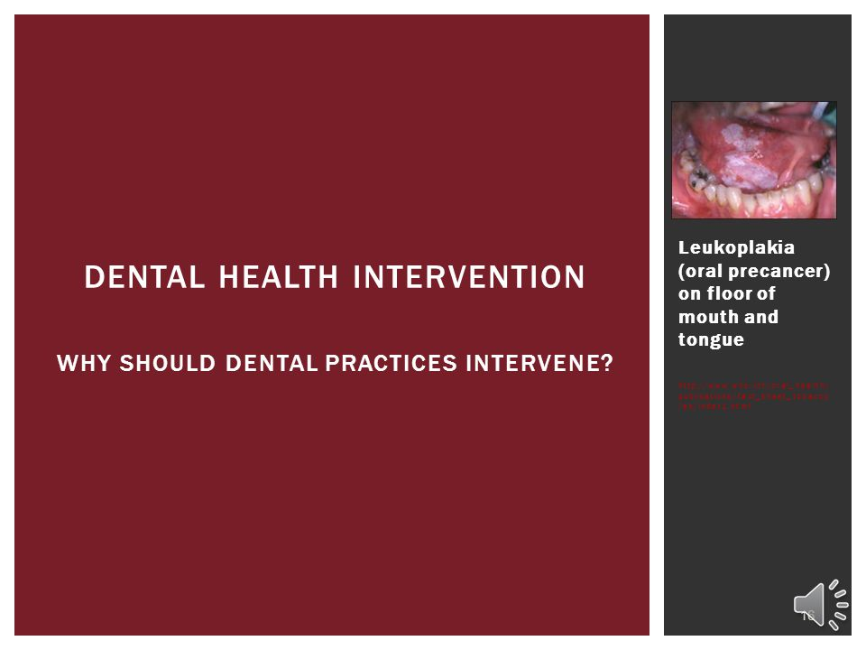Dental Health Intervention WHY SHOULD DENTAL PRACTICES INTERVENE