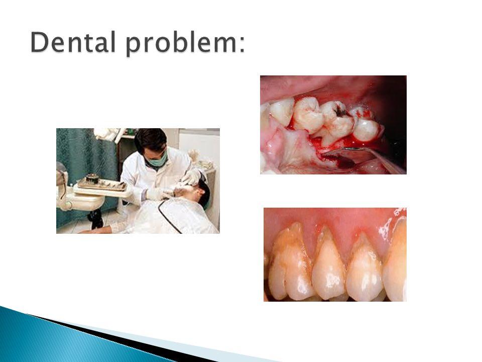 Dental problem: