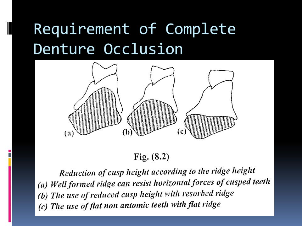 Requirement of Complete Denture Occlusion