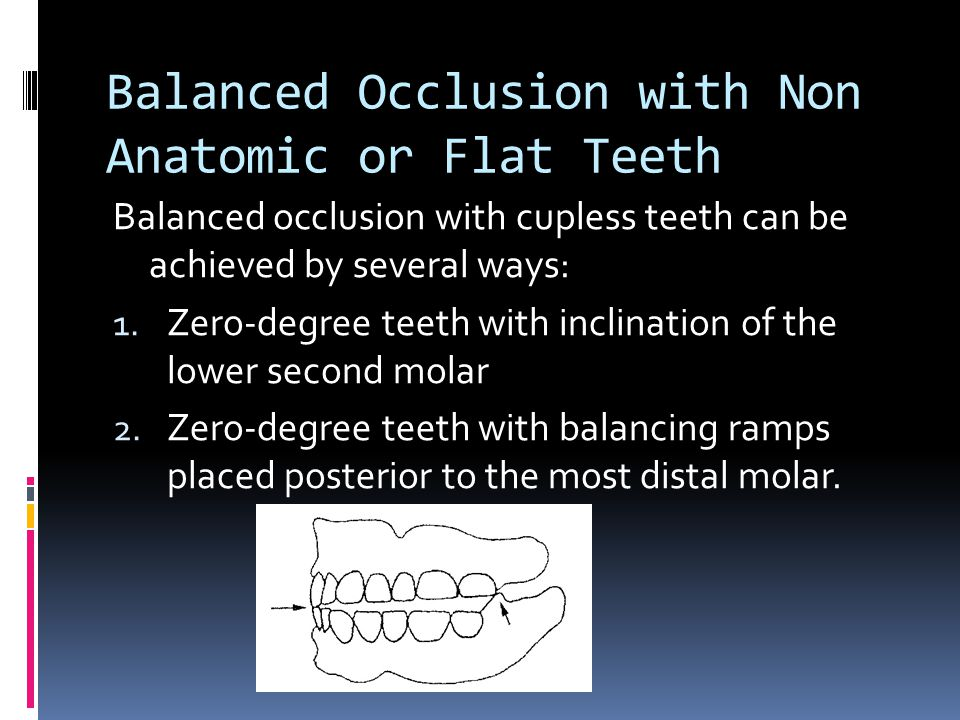 Balanced Occlusion with Non Anatomic or Flat Teeth