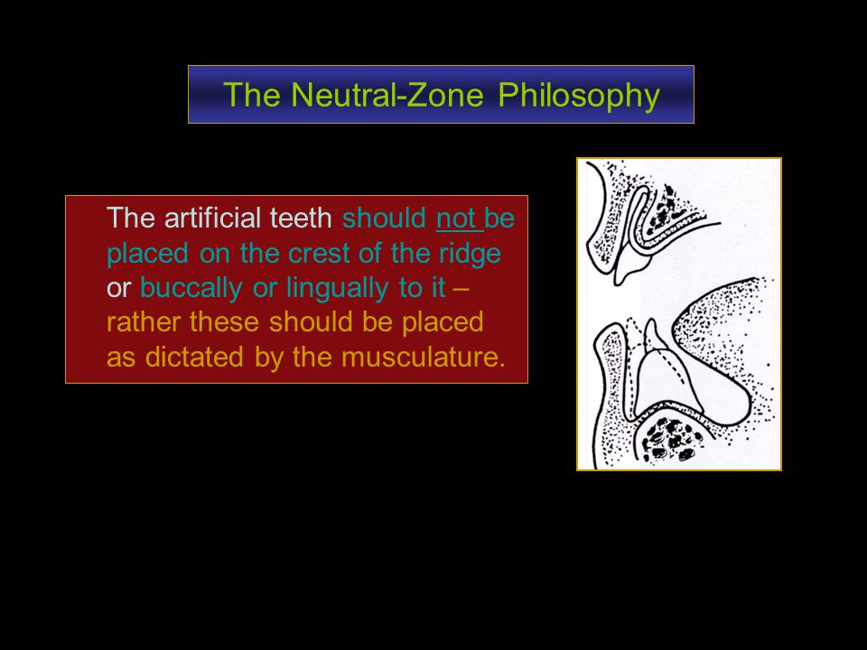 The Neutral-Zone Philosophy