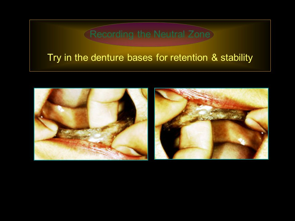 Recording the Neutral Zone Try in the denture bases for retention & stability