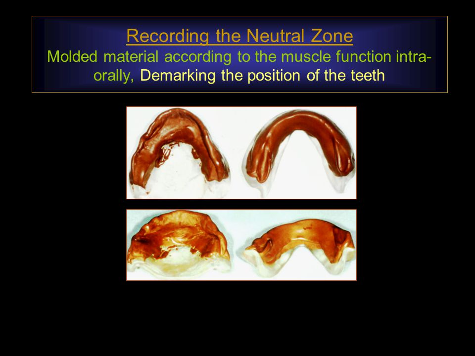 Recording the Neutral Zone Molded material according to the muscle function intra-orally, Demarking the position of the teeth