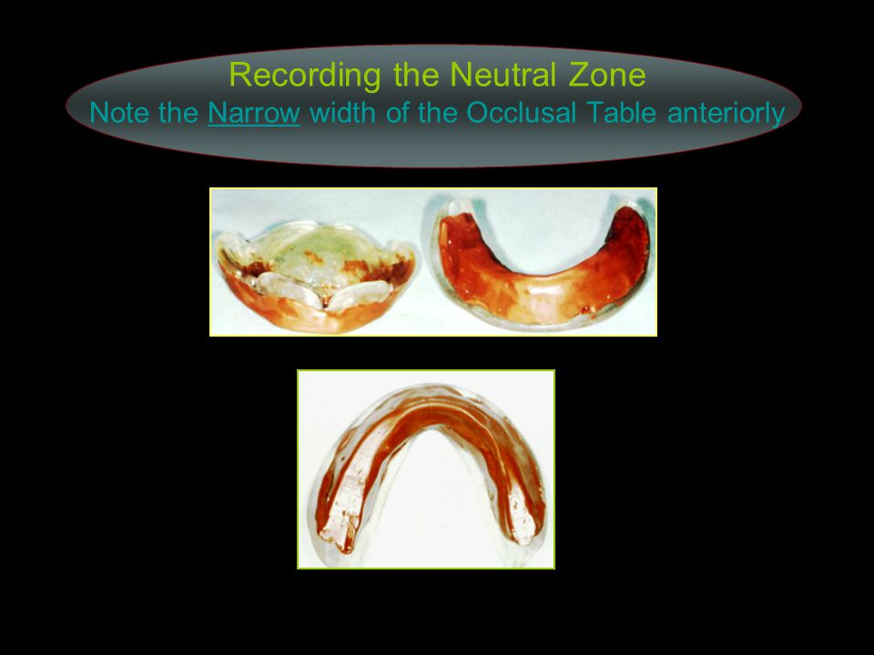 Recording the Neutral Zone Note the Narrow width of the Occlusal Table anteriorly
