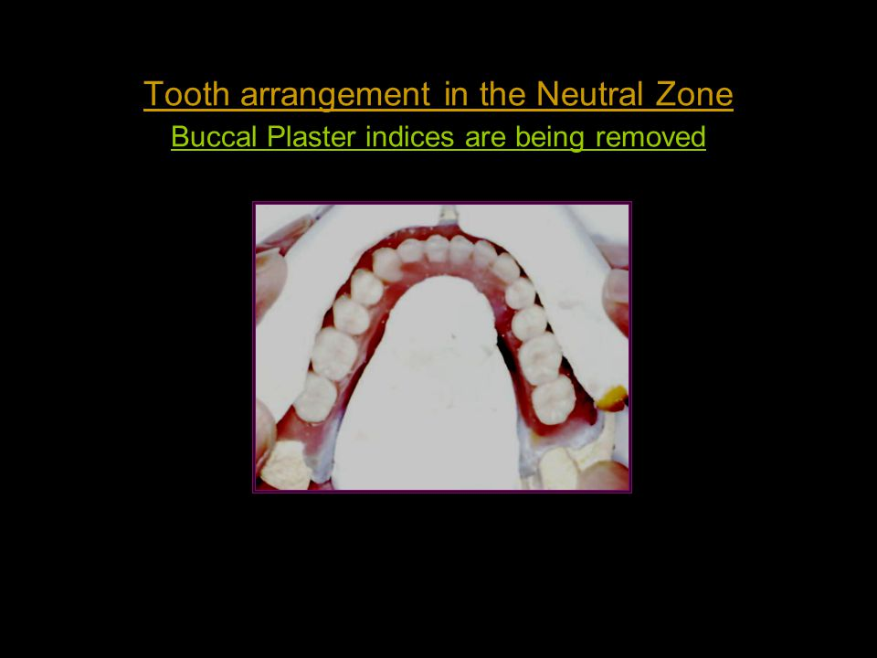 Tooth arrangement in the Neutral Zone Buccal Plaster indices are being removed