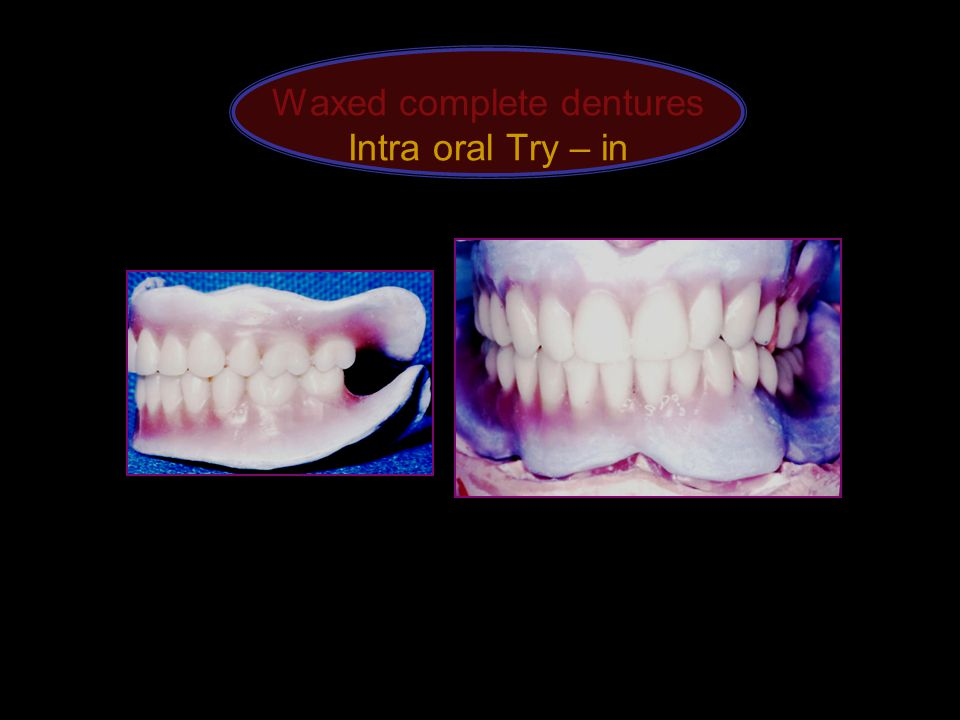 Waxed complete dentures Intra oral Try – in