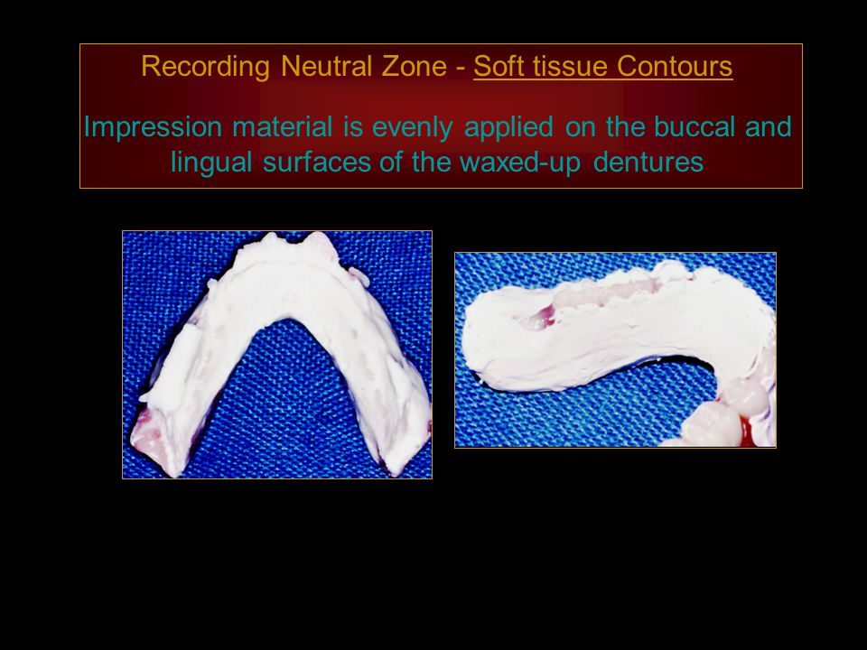 Recording Neutral Zone - Soft tissue Contours Impression material is evenly applied on the buccal and lingual surfaces of the waxed-up dentures