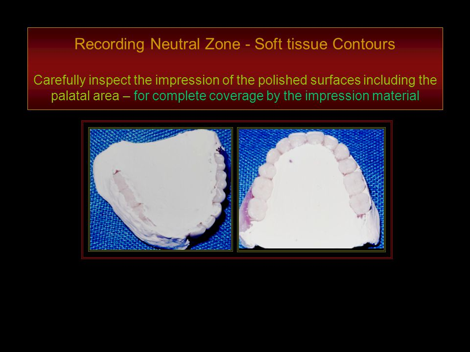 Recording Neutral Zone - Soft tissue Contours Carefully inspect the impression of the polished surfaces including the palatal area – for complete coverage by the impression material