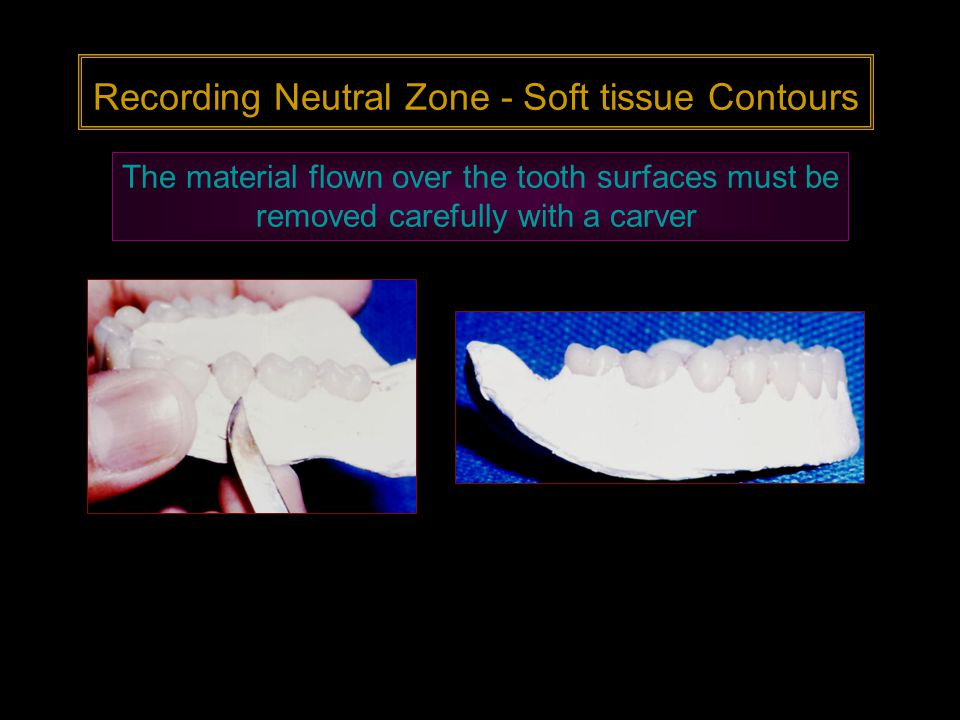 Recording Neutral Zone - Soft tissue Contours The material flown over the tooth surfaces must be removed carefully with a carver