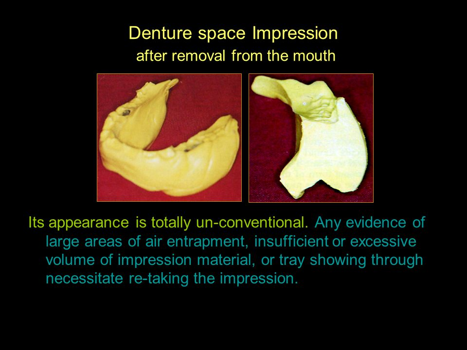 Denture space Impression after removal from the mouth