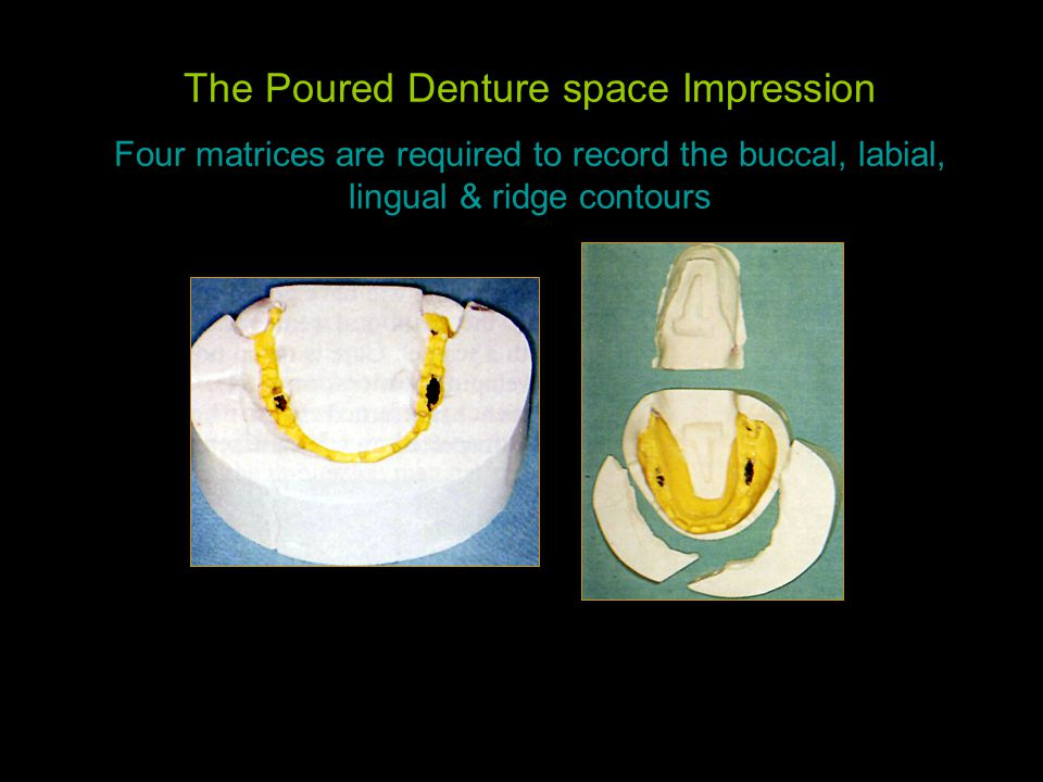 The Poured Denture space Impression Four matrices are required to record the buccal, labial, lingual & ridge contours