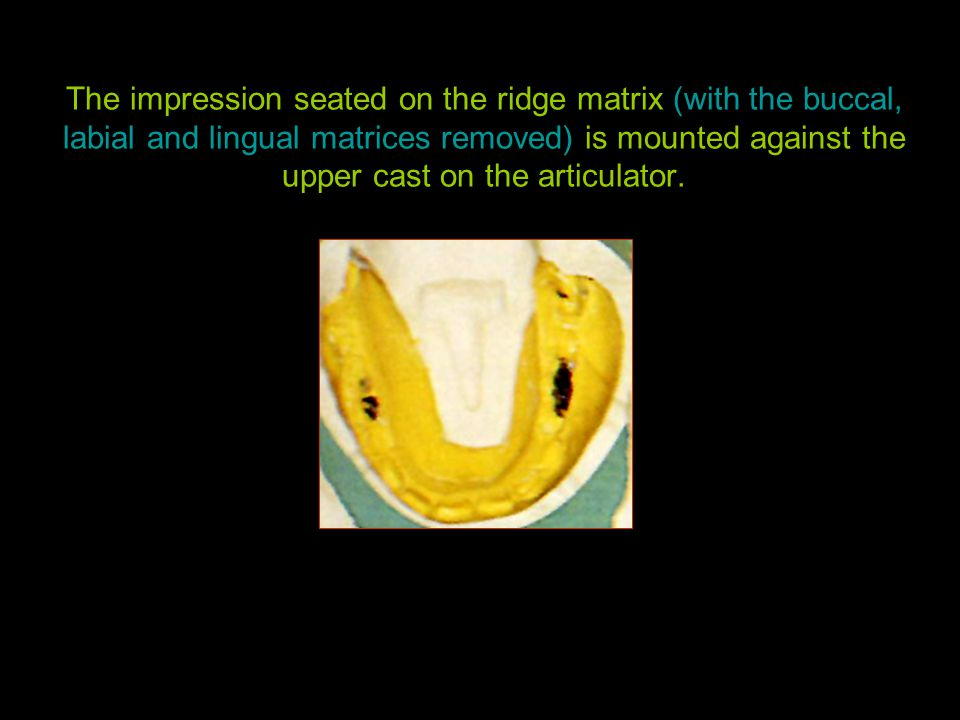 The impression seated on the ridge matrix (with the buccal, labial and lingual matrices removed) is mounted against the upper cast on the articulator.