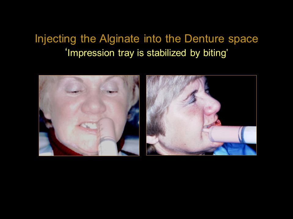 Injecting the Alginate into the Denture space 'Impression tray is stabilized by biting'
