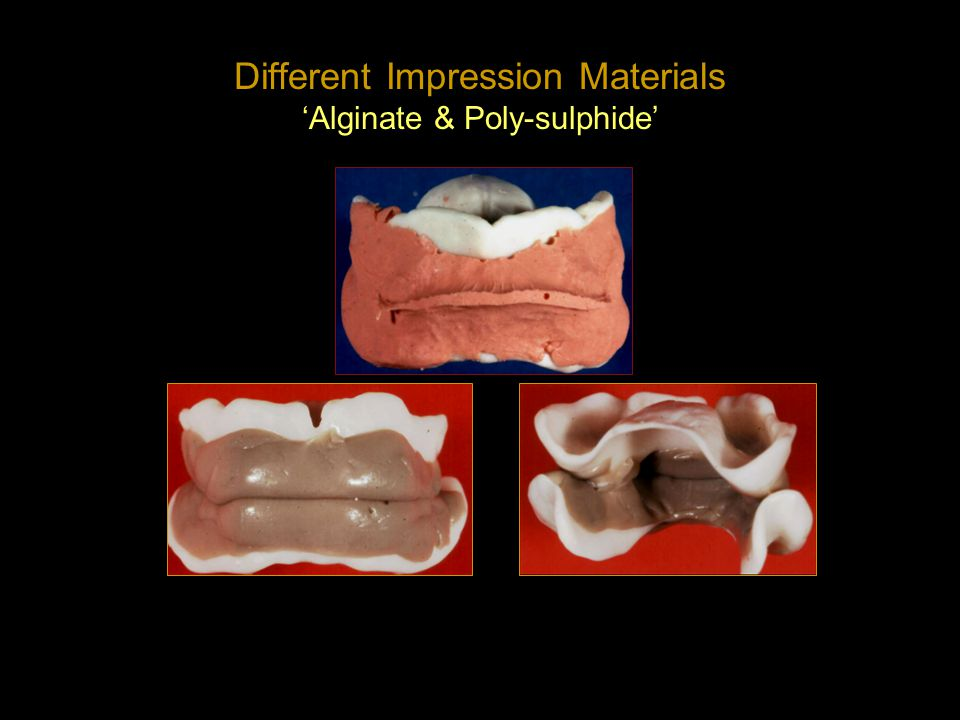Different Impression Materials 'Alginate & Poly-sulphide'